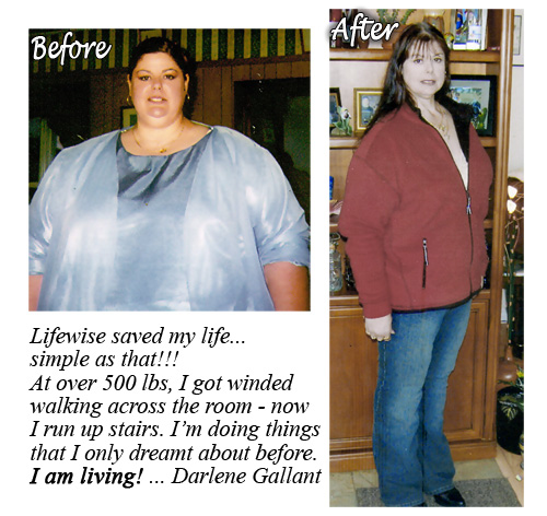 darlene-before-and-after